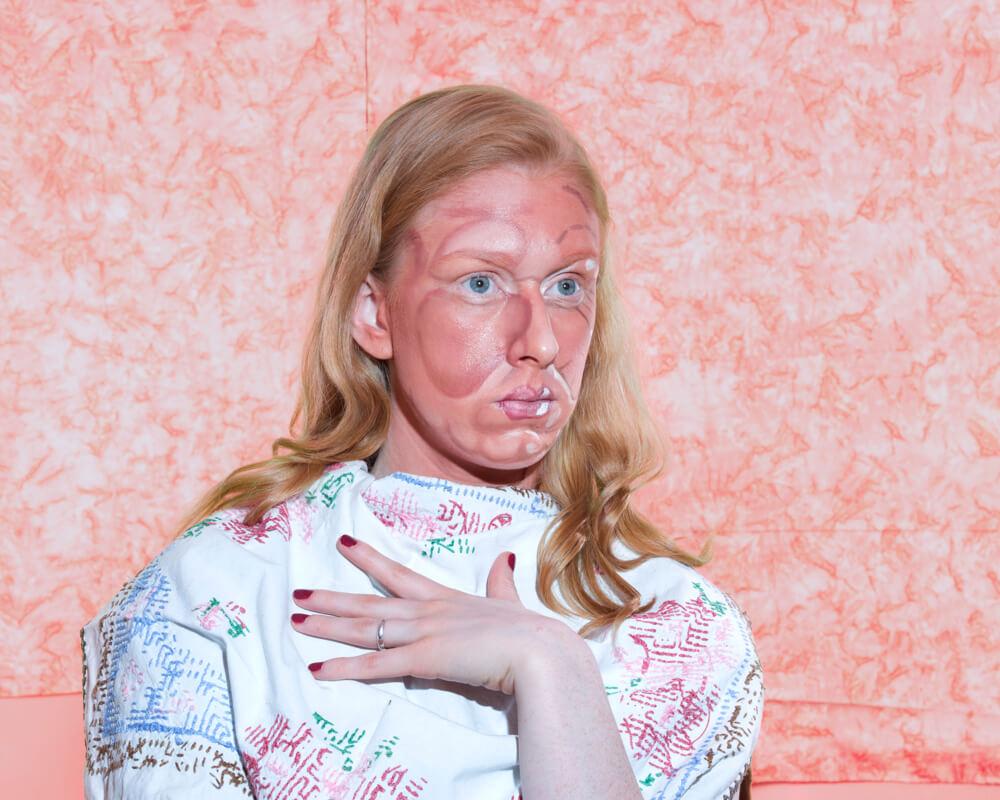 Jente med silikon - brent hud