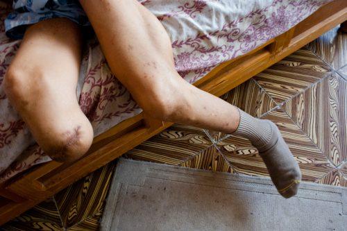 विवादास्पद पैर वाला व्यक्ति